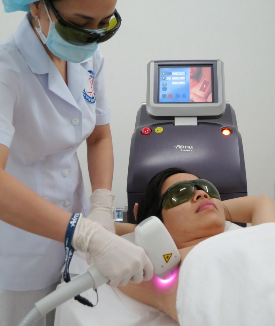 """""""Triệt Lông Không Đau"""" với Laser mới vừa vào Việt Nam - 114323"""
