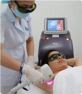 Pain-free laser hair removal by Laser Soprano