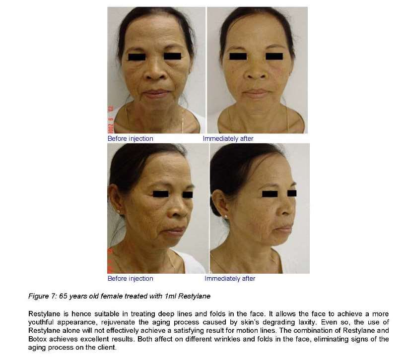 Facial rejuvenation using Botox, Restylane, Thermage