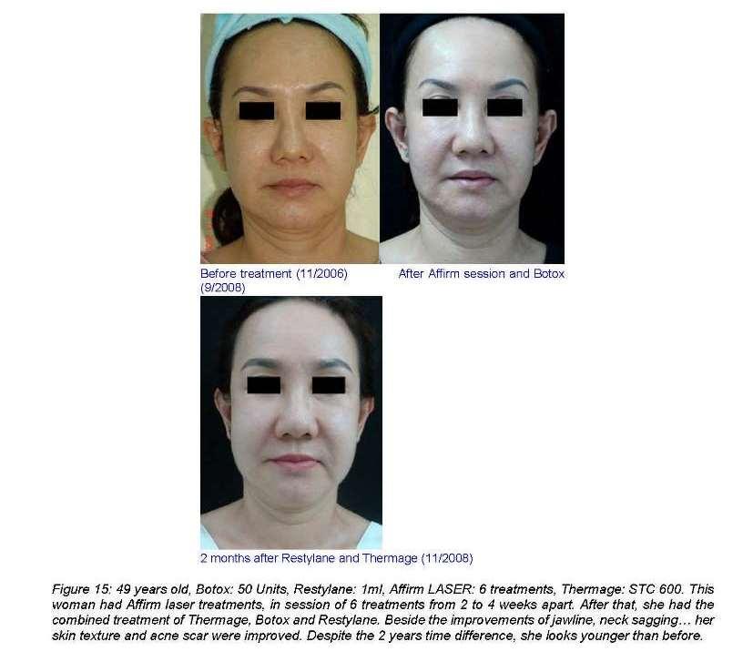 Facial rejuvenation using Botox, Restylane, Thermage